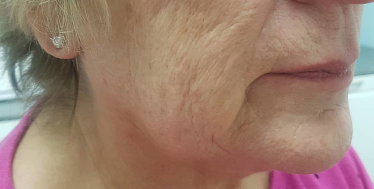 CACI Non-Surgical Face Lift Before & After - Winslow Skincare