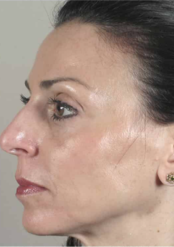 CACI Microdermabrasion Before & After - Winslow Skincare