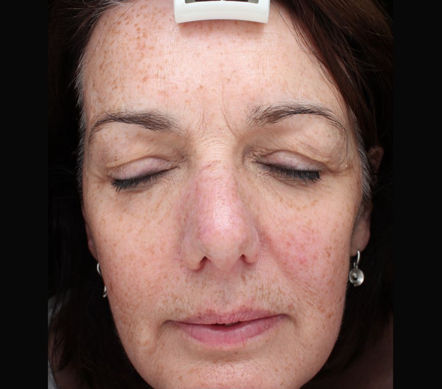Light Fusion Before & After - Winslow Skincare