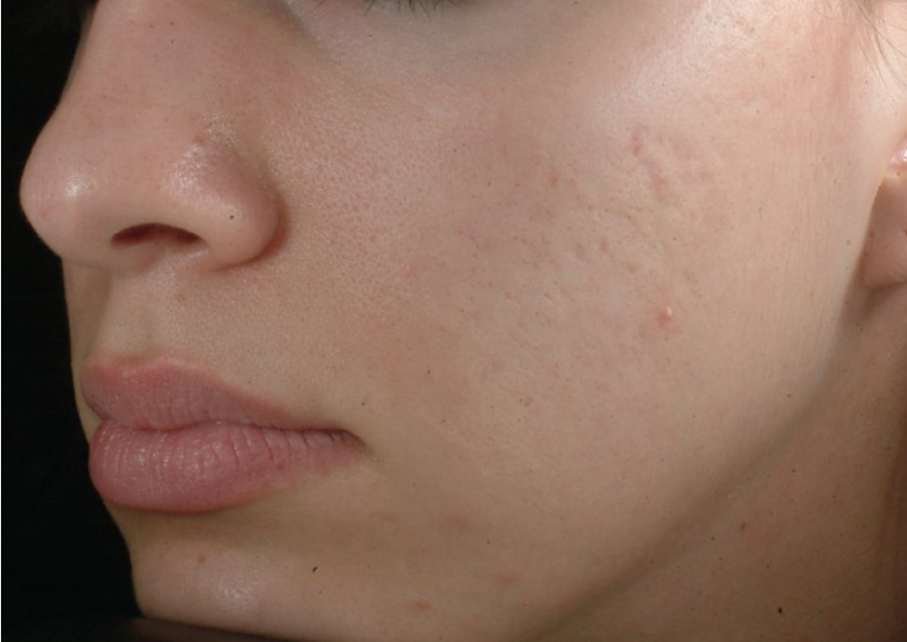 Microdermabrasion Before & After - Winslow Skincare
