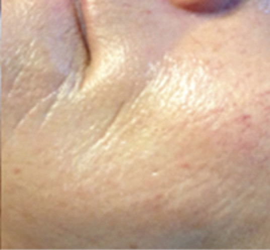 Micro-Needling After