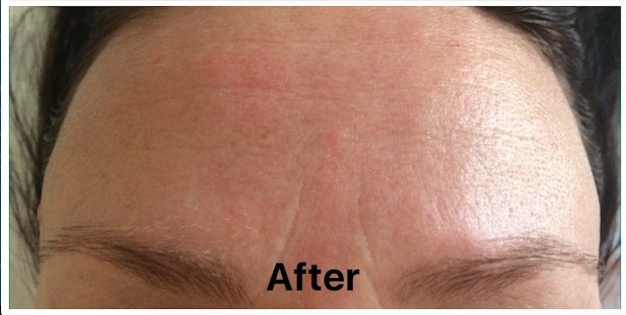 Frown Treatment After